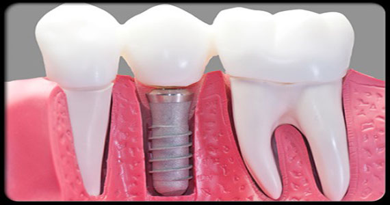 dental-problems-s14-dental-implant